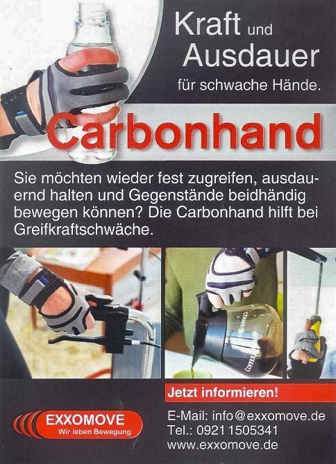 Bericht über Carbonhand in
